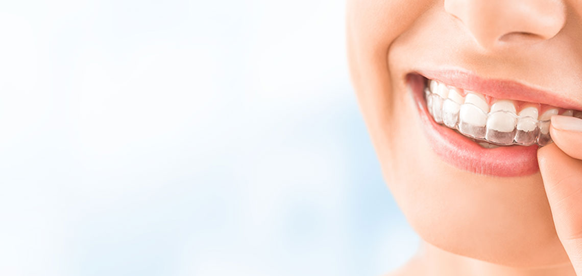 Dental Veneers in Houston, TX