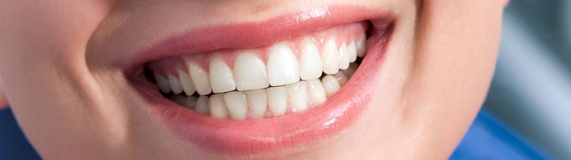 Is Teeth Whitening a Safe Choice?
