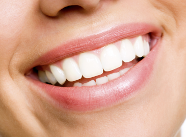 4 Things You Need to Know Before Considering a Gum Graft