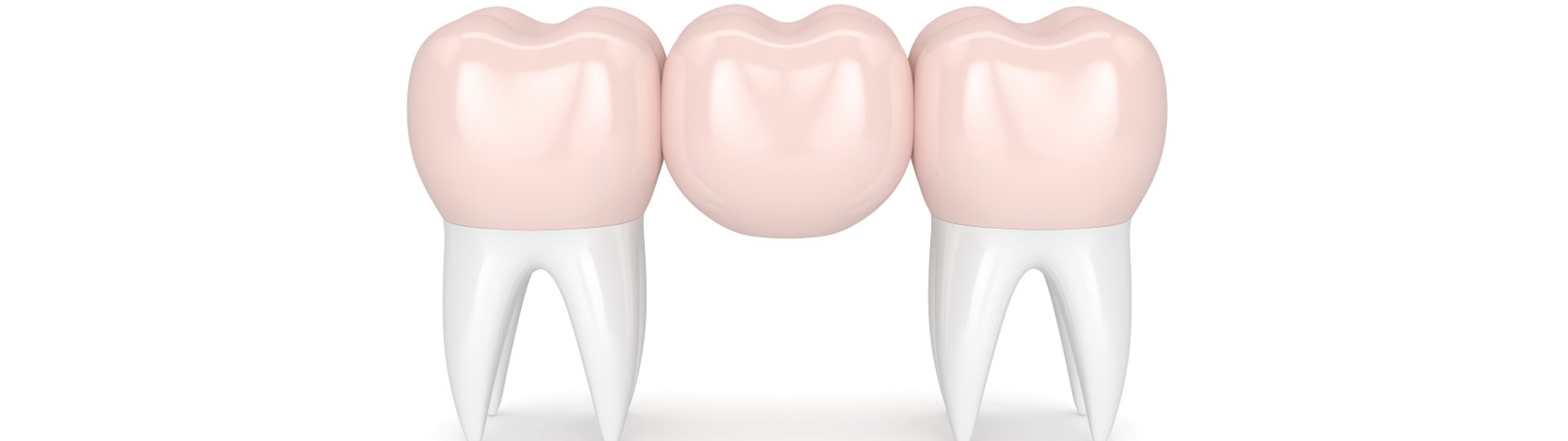 Dental Bridge – Types, Costs, Problems & Difference To Implants