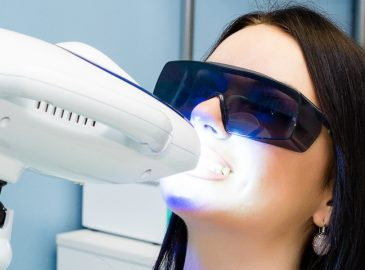 Common Myths Surrounding Teeth Whitening